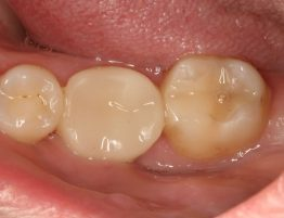 Post Cerec 3D Restoration