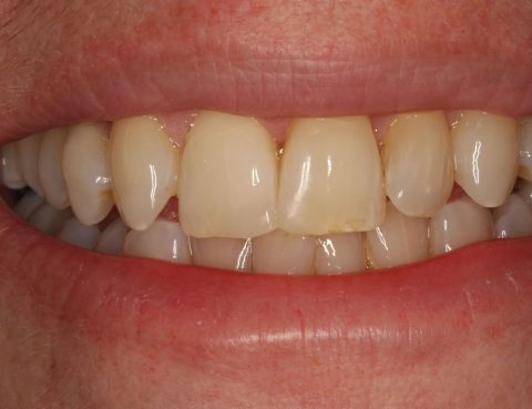 Post Tooth Coloured Filling