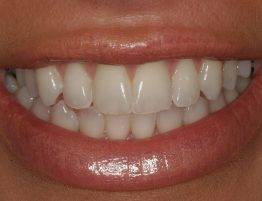 Post Whitening Treatment