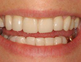 Post Worn Teeth Treatment