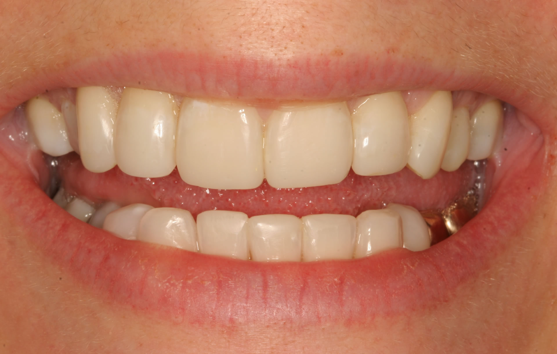 Post Worn Teeth Treatment